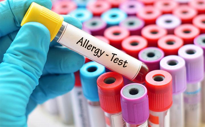 アレルゲン検査